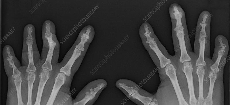Arthritis psoriatica destruktiv, mutilálo arthritis-szel