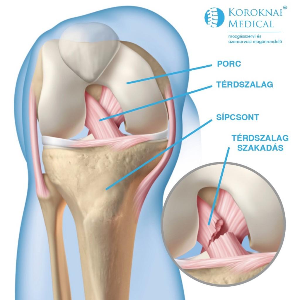 térdízület fáj és összeroppant