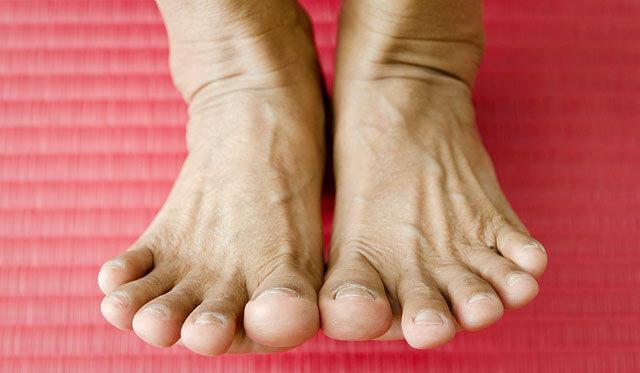 csattanó ízületek és fájó lábak)