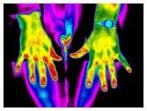 rheumatoid arthritis, melyet az ízületek befolyásolnak)