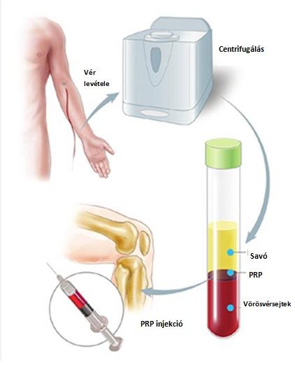 plazma felhasználása ízületek kezelésére