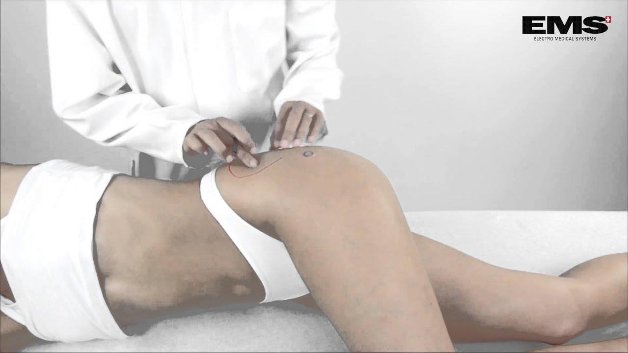 masszázs a csípőfájdalom enyhítésére)