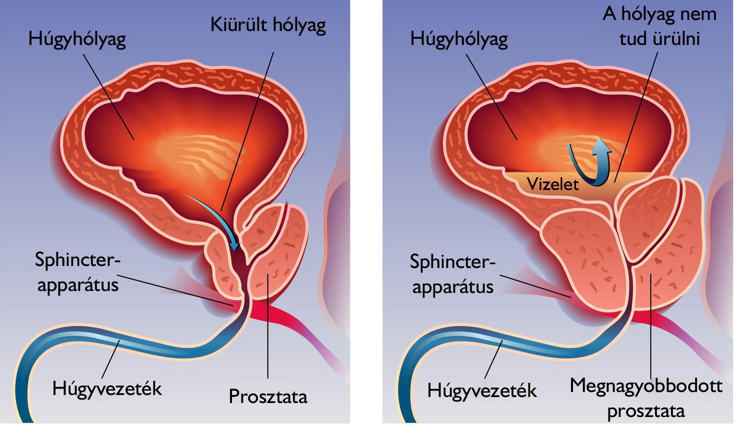 ízületi és prosztata fájdalmak gél a nyaki gerinc csontritkulásáért