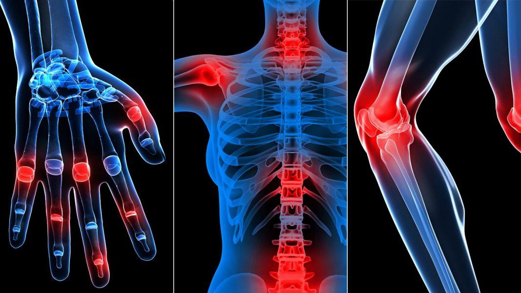 ureaplasma ízületi fájdalom és ureaplasma