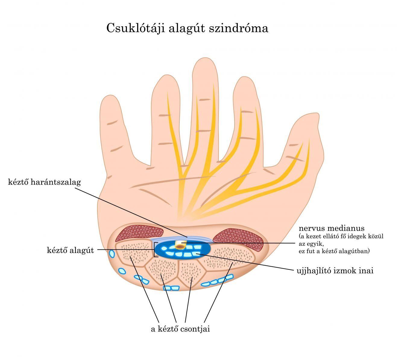 duzzadt ujjízület kezelése)