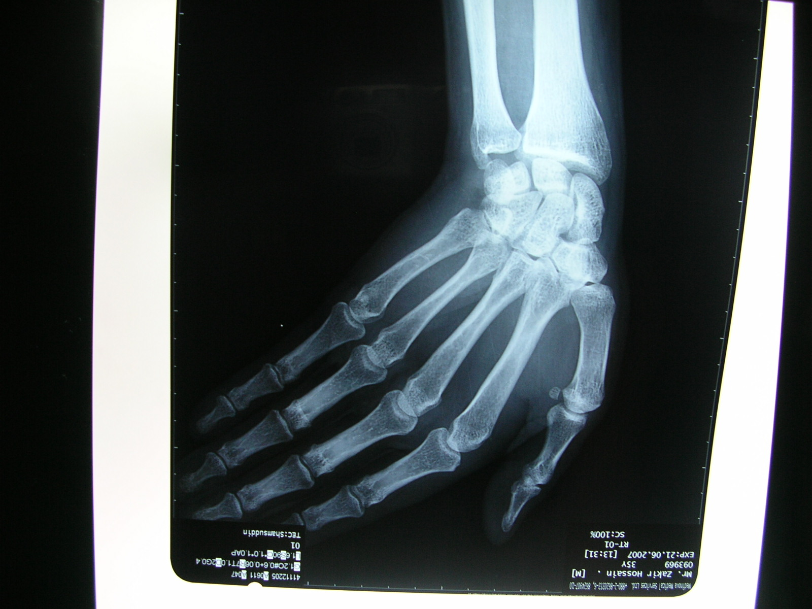rheumatoid arthritis radiology slideshare