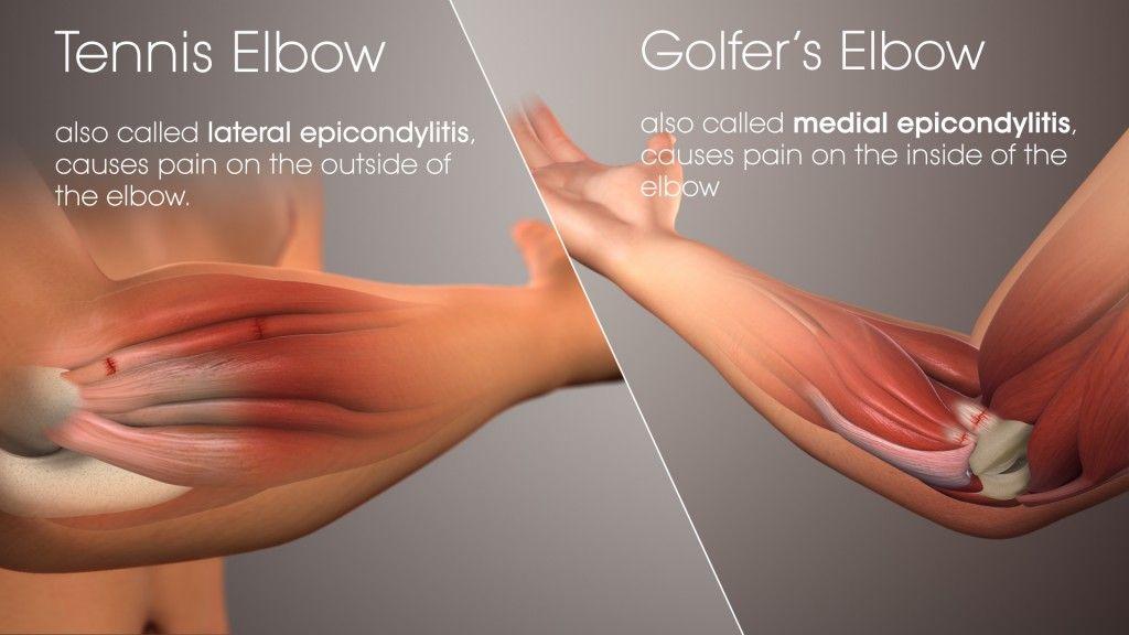 emberi könyök csontritkulás kondroxid kenőcs a térd artrózisához