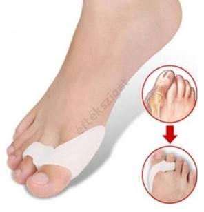 a jobb láb nagy lábujjának ízületeinek gyulladása)