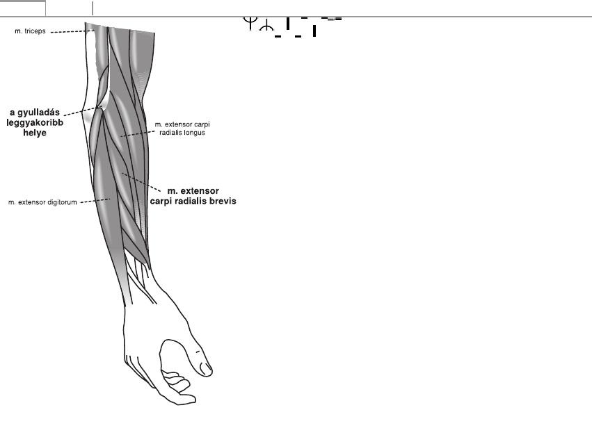 artrózisos bursitis kezelése)
