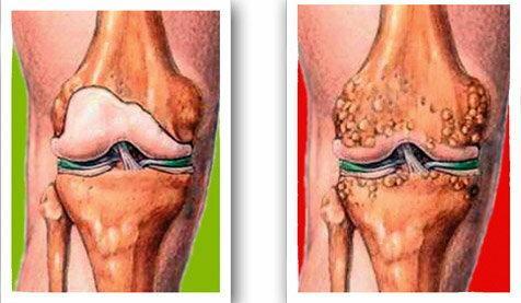 a térd artrózisa 2 fokos mit kell tenni)