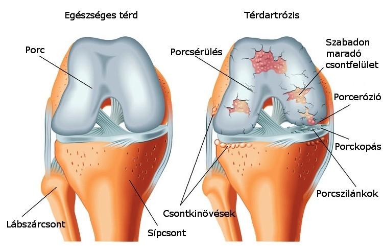 zsálya artrózis kezelésére