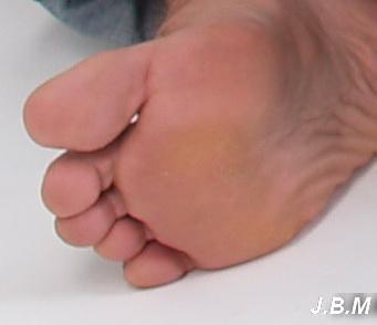 fáj a kis lábujj ízülete)