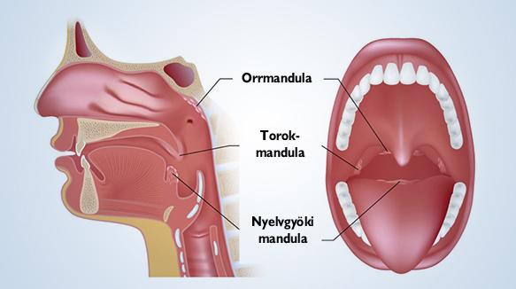 Ezek a hátsó garatfali váladékcsorgás tünetei - EgészségKalauz