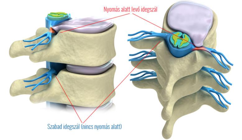 csípőfájdalom, ágyéki sérv