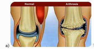 a térd artrózisának tünetei 1 fok)