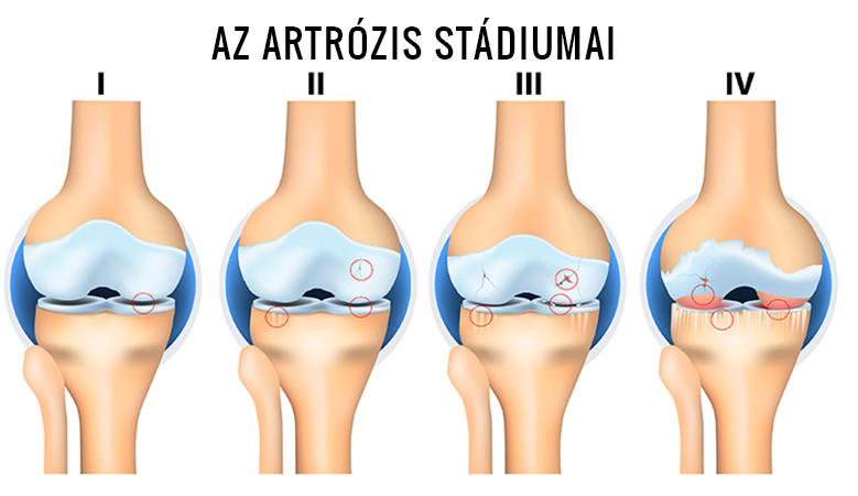 korai artrózis a térd