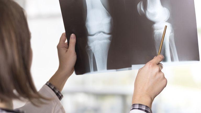 a boka ízületének sérüléseivel, ödéma az ízületek artrózisának mértéke