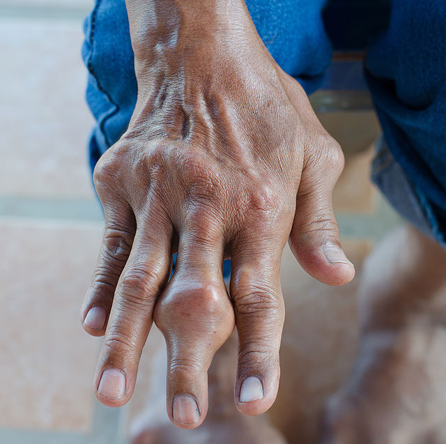 hogyan lehet kezelni az ujjízületi gyulladást)