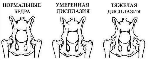 hogyan lehet kezelni a csípő-diszlokációt felnőtteknél)