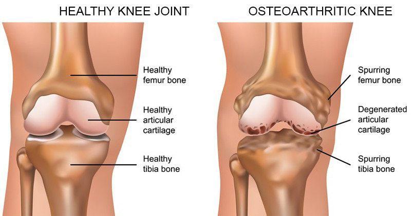 ortofen térdízületi kezelés
