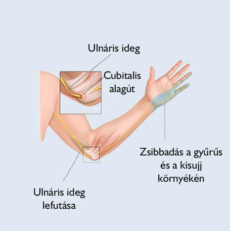 könyökfájdalom és az ujjak zsibbadása)