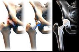 Az ízületek kopása, artrózisa