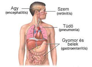 Cytomegalovírus fertőzéshez társult arthritis