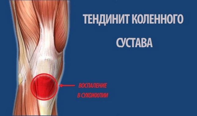 térdízületi gyulladás sportolókban)