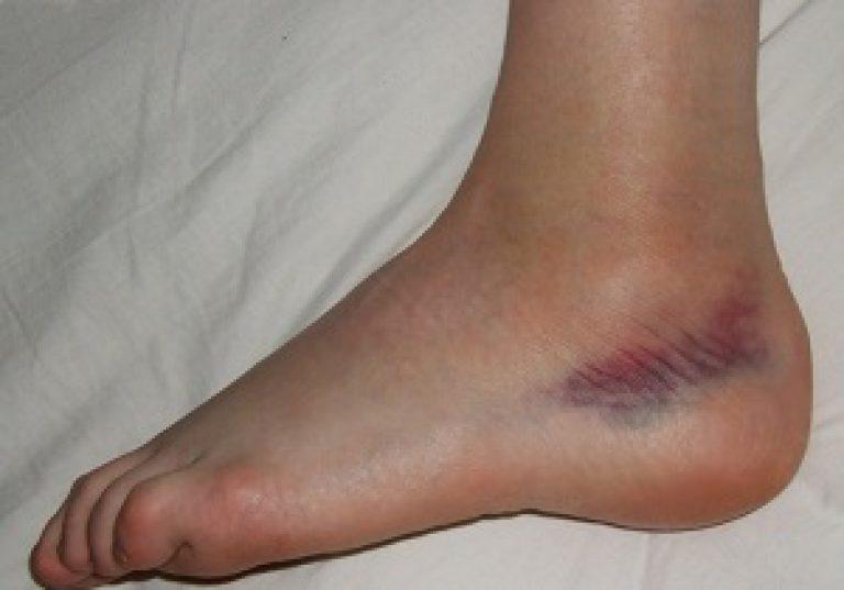A bokaízület arthrosisának kezelése 1 fok