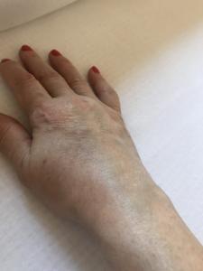 ózonterápiás artrózis kezelés ízületi fájdalom és kiütés