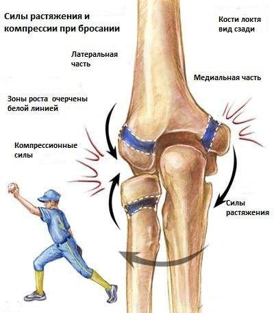 fájdalom a könyökízület belső kanyarában térd gonarthrosis kezelésére
