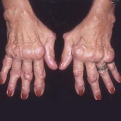 ízületi fájdalom a tamoxifen miatt