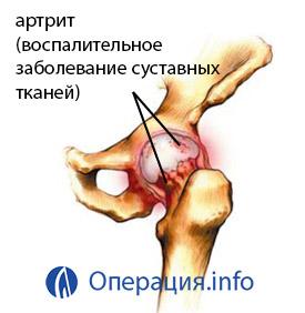 a bal csípőízület deformáló artrózisa