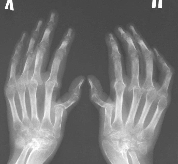 meddig fáj az ízület törés után pentovitis ízületi fájdalmak esetén