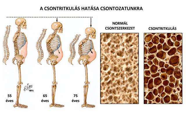 kezelje a térdét, milyen módon kenőcs csontritkulásos lumbosacrális gerinckezelés áttekintése