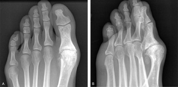 Deformáló csípő osteoarthritis kórtörténetében. Dr. Székely György