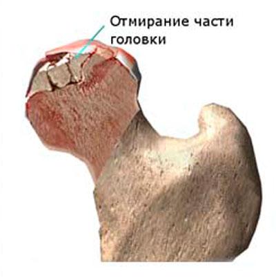 a csípőízületek deformáló osteoarthrosisának 3 fokos kezelése