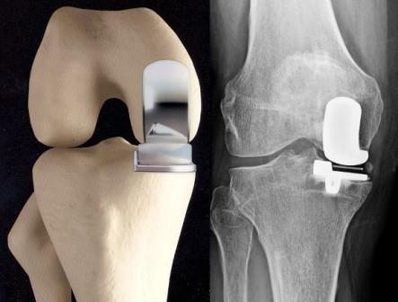 exostosis ízületi fájdalom csípőízület osteoarthrosis gyógyszere