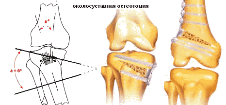térdízület 3. fokú csontritkulása)