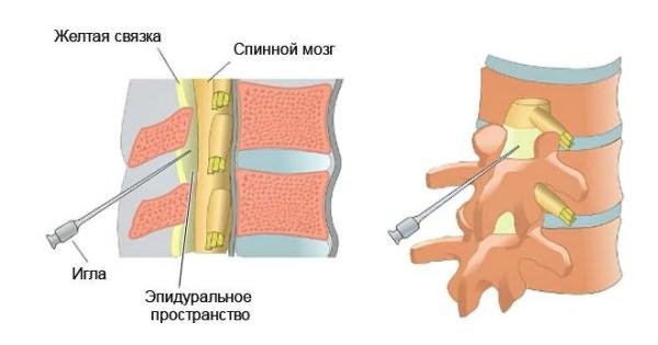 milyen kenőcsöket kell használni az osteochondrozishoz