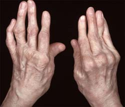 a lábízület gyulladásának kezelése)