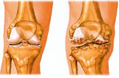 akik artrózist kezelnek 2 fokkal a gyógyszer felsorolása az ágyéki osteokondrozisról