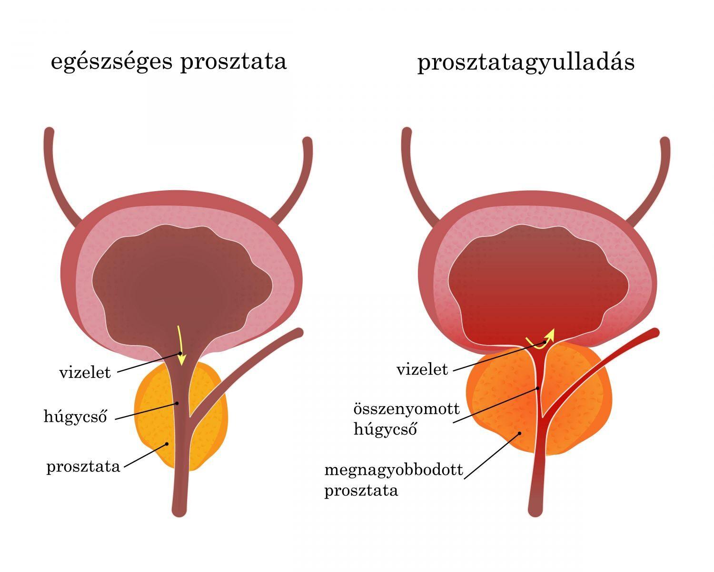 ízületi és prosztata fájdalmak van-e térd osteochondrosis