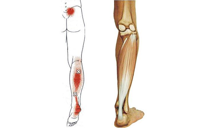 a lábak ízületei tényleg fájnak, mit kell tenni