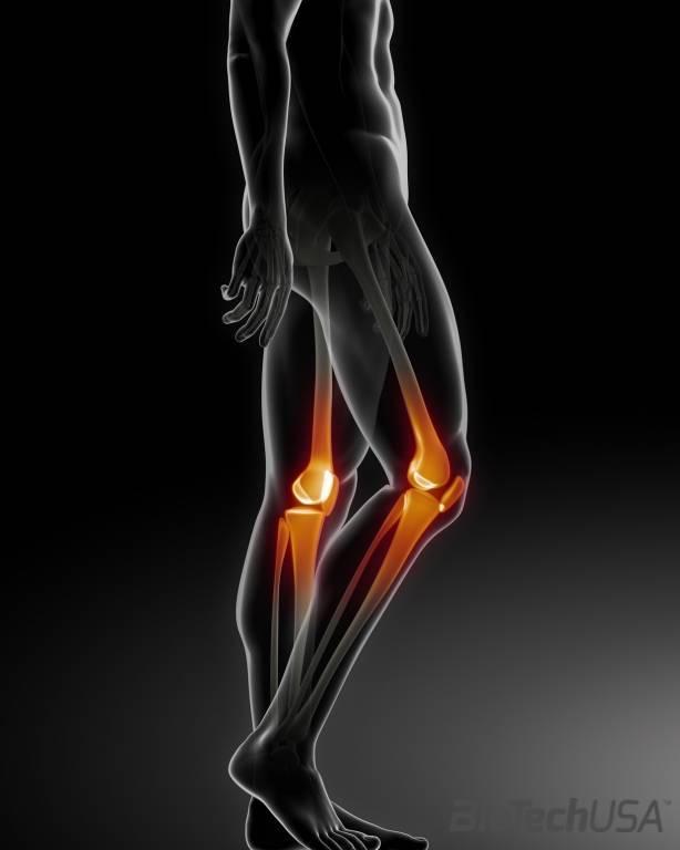 térd artrózis 2 fokos tünetek kezelése