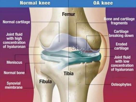 hogyan lehet kezelni a gerincvelő artrózisát