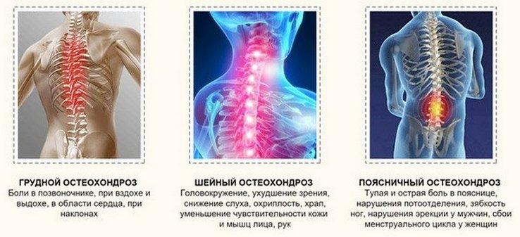 érrendszeri betegek az osteochondrosisban)