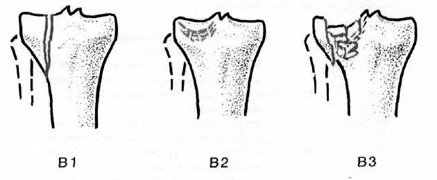fájdalom és bőrpír akut térdízületi kezelés