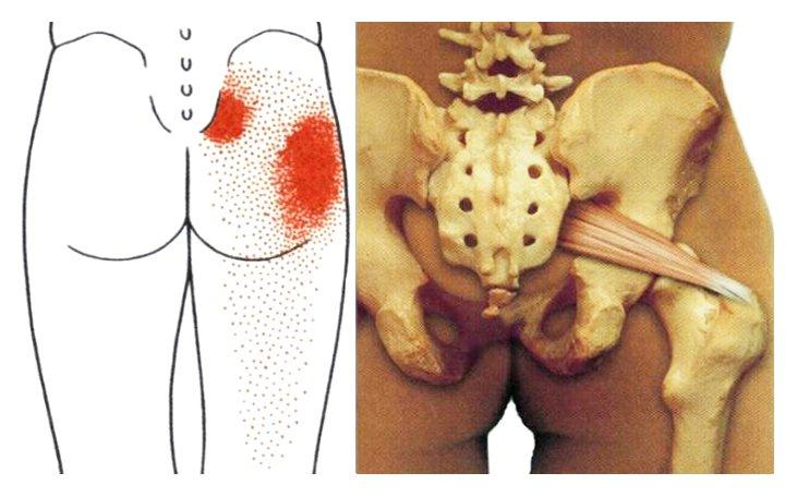 fájdalom az összes ízületben ugyanakkor okot okoz csípőfájdalmak íngyulladása