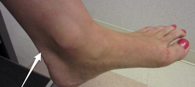 Achilles-ín-gyulladás - Tudástár
